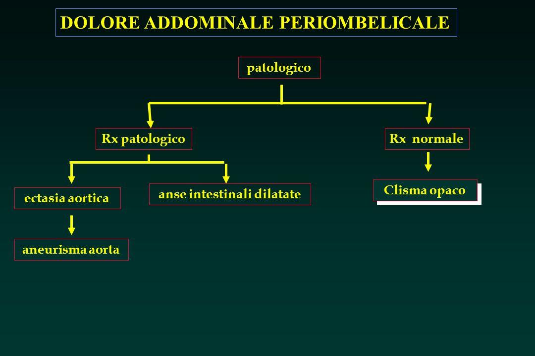 DOLORE ADDOMINALE PERIOMBELICALE Rx patologicoRx normale Clisma opaco anse intestinali dilatate patologico ectasia aortica aneurisma aorta