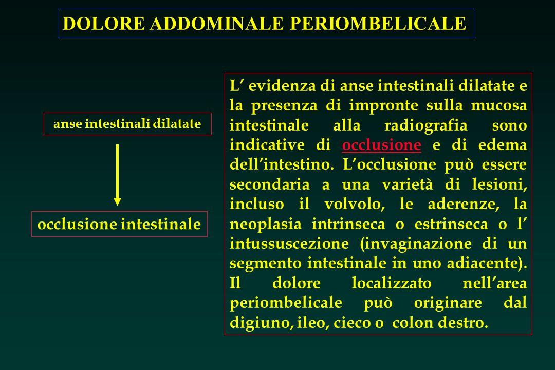 DOLORE ADDOMINALE PERIOMBELICALE occlusione intestinale anse intestinali dilatate L evidenza di anse intestinali dilatate e la presenza di impronte su