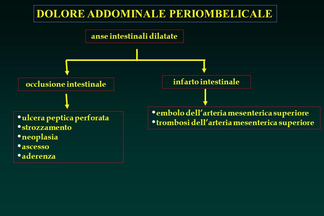 DOLORE ADDOMINALE PERIOMBELICALE occlusione intestinale infarto intestinale ulcera peptica perforata strozzamento neoplasia ascesso aderenza embolo de