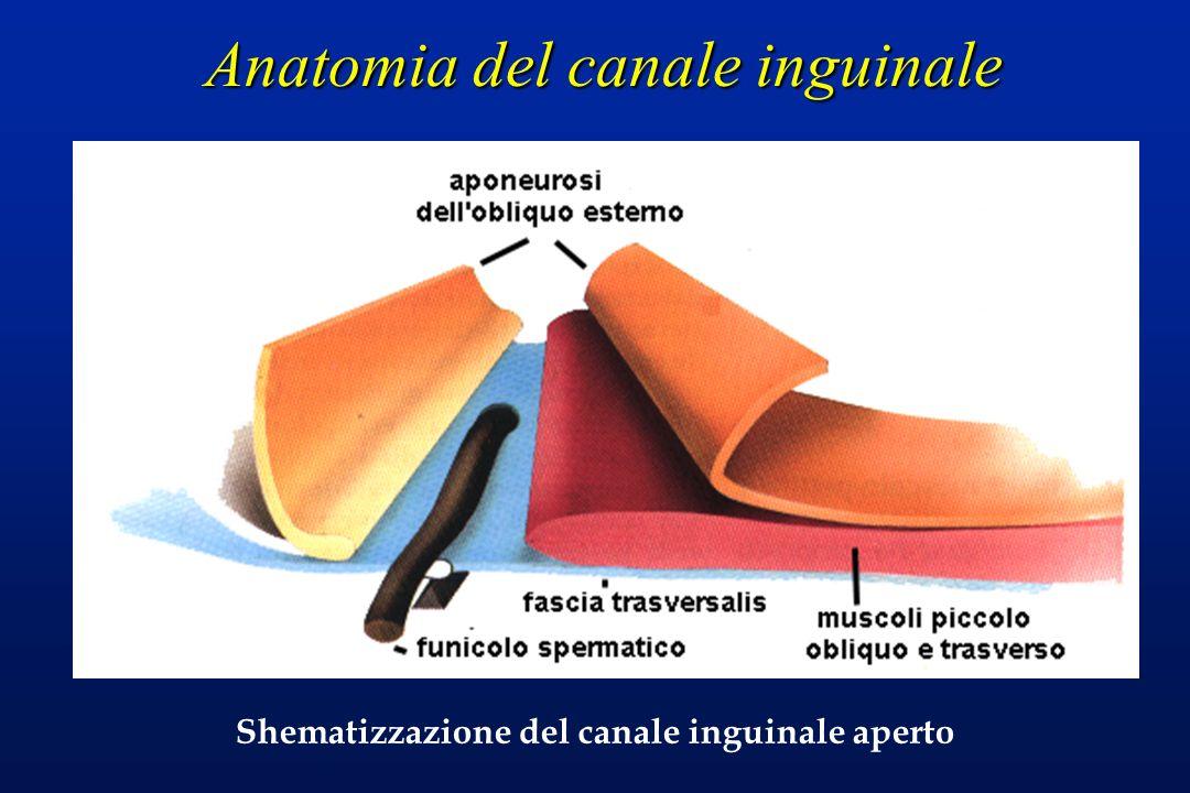 Anatomia del canale inguinale Shematizzazione del canale inguinale aperto