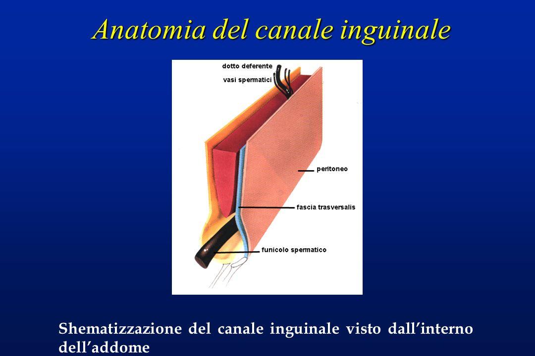 Anatomia del canale inguinale Shematizzazione del canale inguinale visto dallinterno delladdome