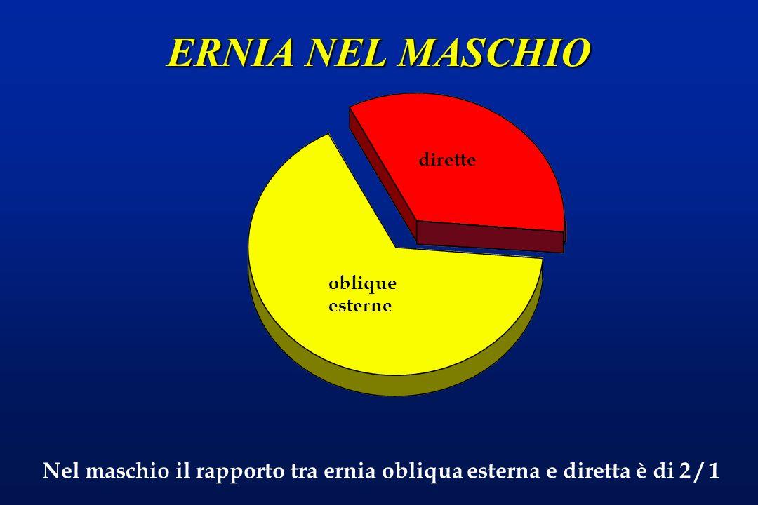 ERNIA NEL MASCHIO oblique esterne dirette Nel maschio il rapporto tra ernia obliqua esterna e diretta è di 2 / 1