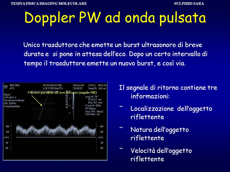 SULPIZIO SARA TESINA FISICA IMAGING MOLECOLARE Unico trasduttore che emette un burst ultrasonoro di breve durata e si pone in attesa delleco. Dopo un