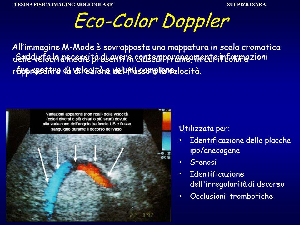 SULPIZIO SARA TESINA FISICA IMAGING MOLECOLARE Eco-Color Doppler Soddisfa la necessità di avere contemporaneamente informazioni fra spettro di velocit
