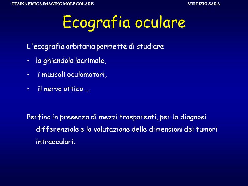 SULPIZIO SARA TESINA FISICA IMAGING MOLECOLARE Ecografia oculare L'ecografia orbitaria permette di studiare la ghiandola lacrimale, i muscoli oculomot