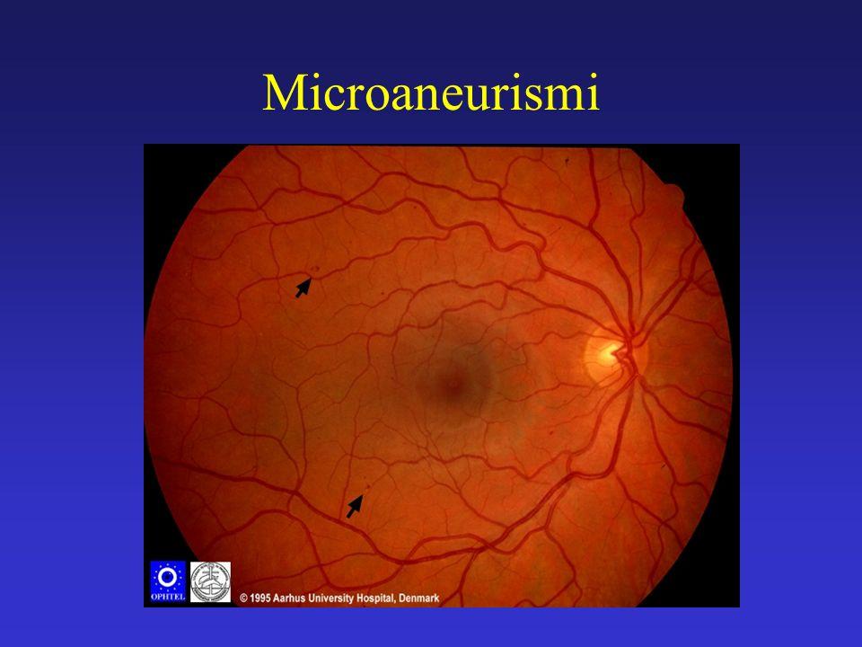 Trattamento laser della RD (1) Maculopatia Il trattamento focale o a griglia o una loro combinazione deve essere eseguito nei pazienti affetti da Clinically Significant Macular Edema.