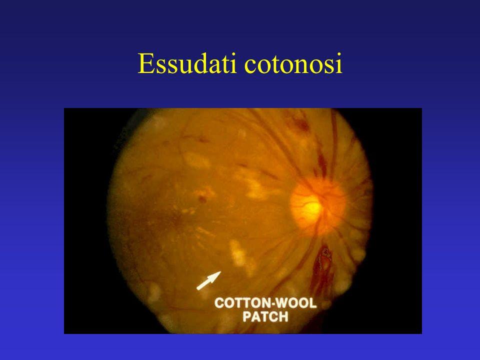 Lo screening della retinopatia diabetica perché (1)...