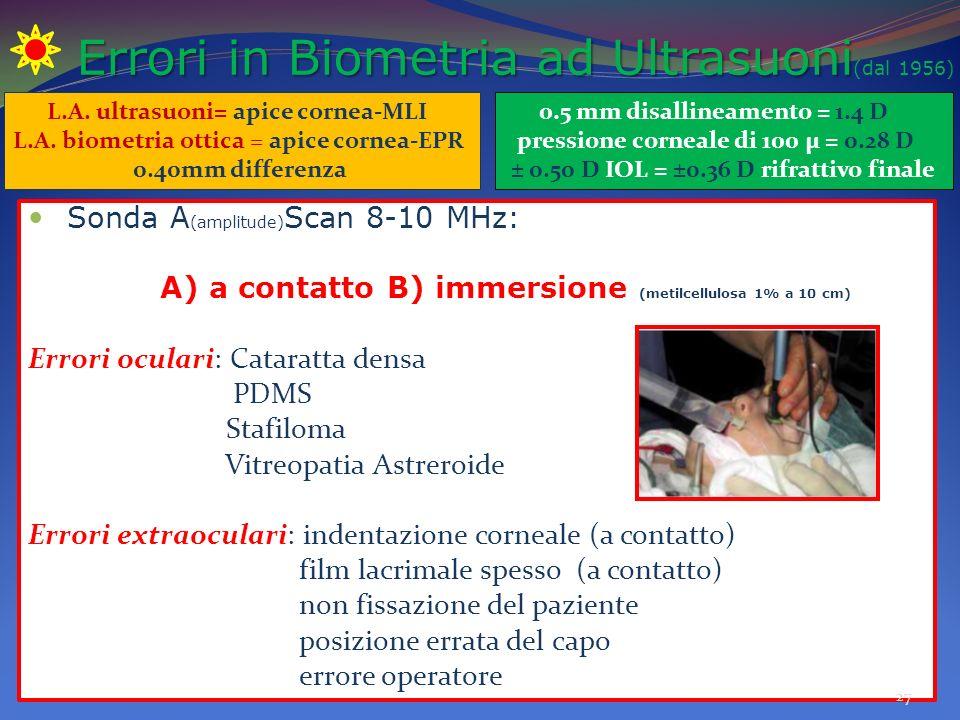 Errori in Biometria ad Ultrasuoni Errori in Biometria ad Ultrasuoni (dal 1956) Sonda A (amplitude) Scan 8-10 MHz: A) a contatto B) immersione (metilcellulosa 1% a 10 cm) Errori oculari: Cataratta densa PDMS Stafiloma Vitreopatia Astreroide Errori extraoculari: indentazione corneale (a contatto) film lacrimale spesso (a contatto) non fissazione del paziente posizione errata del capo errore operatore 27 L.A.
