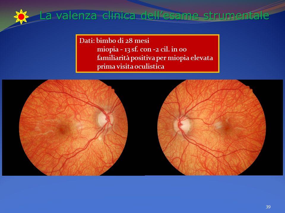 La valenza clinica dellesame strumentale 39 Dati: bimbo di 28 mesi miopia - 13 sf.
