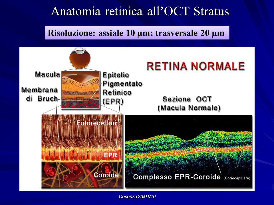 Cosenza 23/01/10 Anatomia retinica allOCT Stratus Anatomia retinica allOCT Stratus Risoluzione: assiale 10 µm; trasversale 20 µm