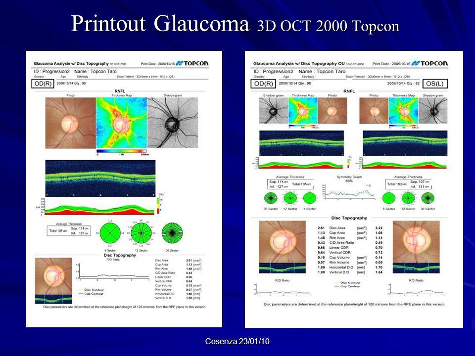 Printout Glaucoma 3D OCT 2000 Topcon Printout Glaucoma 3D OCT 2000 Topcon Cosenza 23/01/10