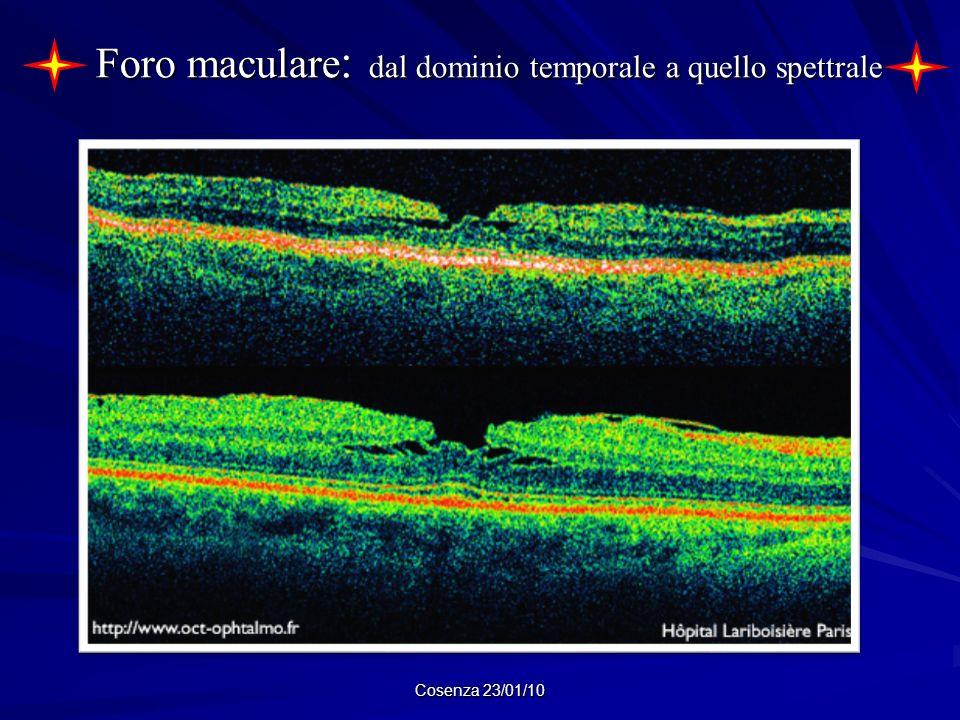 Foro maculare : dal dominio temporale a quello spettrale Cosenza 23/01/10