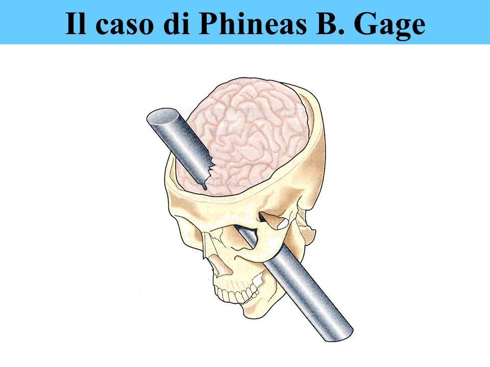 Il caso di Phineas B. Gage