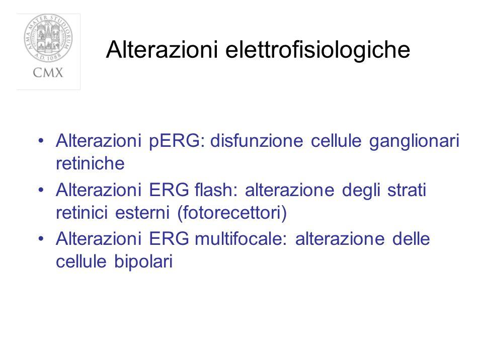 Alterazioni elettrofisiologiche Alterazioni pERG: disfunzione cellule ganglionari retiniche Alterazioni ERG flash: alterazione degli strati retinici e
