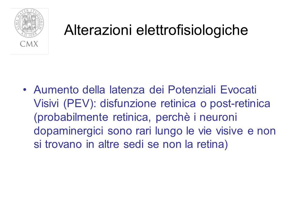 Alterazioni elettrofisiologiche Aumento della latenza dei Potenziali Evocati Visivi (PEV): disfunzione retinica o post-retinica (probabilmente retinic