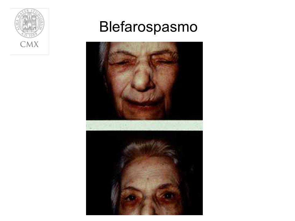 Blefarospasmo