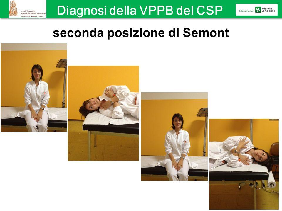 seconda posizione di Semont Diagnosi della VPPB del CSP