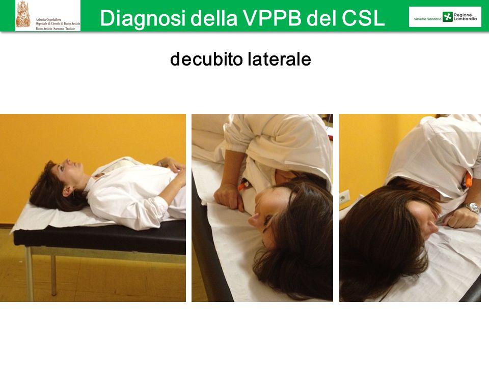 Diagnosi della VPPB del CSL decubito laterale