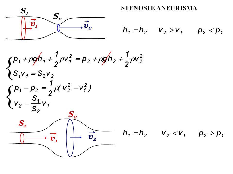 STENOSI E ANEURISMA S1S1 S2S2 v1v1 v2v2 { { v1v1 v2v2 S1S1 S2S2