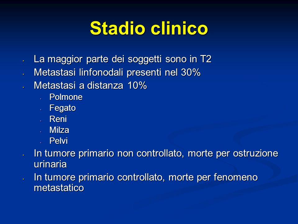 Stadio clinico La maggior parte dei soggetti sono in T2 La maggior parte dei soggetti sono in T2 Metastasi linfonodali presenti nel 30% Metastasi linf
