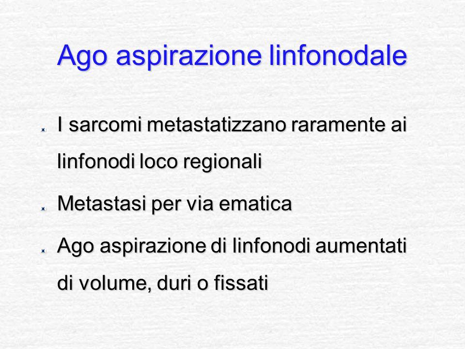 Ago aspirazione linfonodale I sarcomi metastatizzano raramente ai linfonodi loco regionali Metastasi per via ematica Ago aspirazione di linfonodi aume