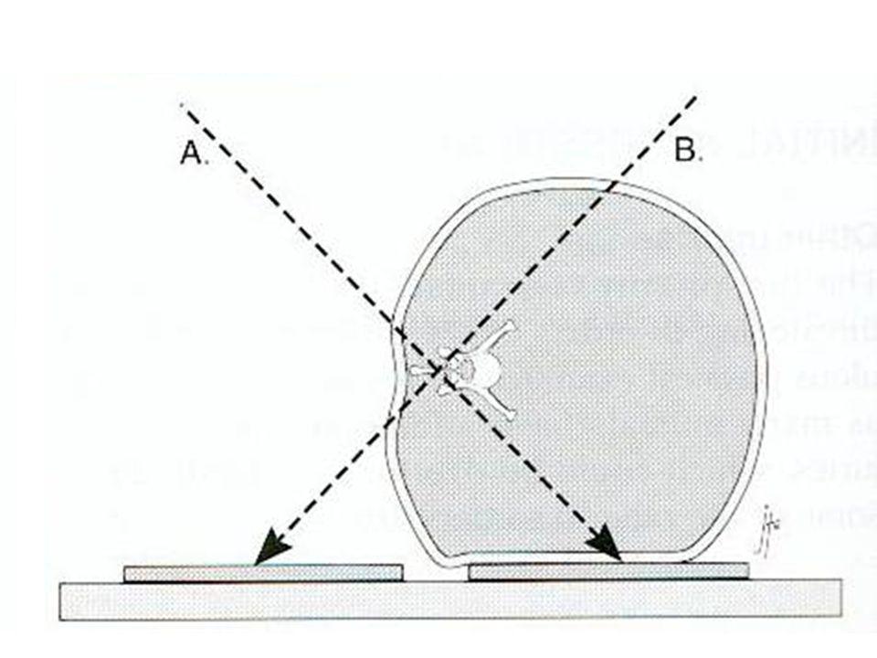 Radiografie oblique figura pag172 wheeler