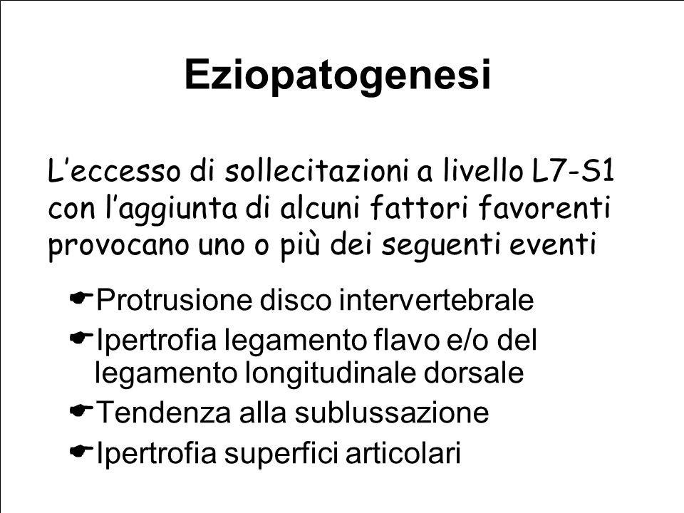 Eziopatogenesi Protrusione disco intervertebrale Ipertrofia legamento flavo e/o del legamento longitudinale dorsale Tendenza alla sublussazione Ipertrofia superfici articolari Leccesso di sollecitazioni a livello L7-S1 con laggiunta di alcuni fattori favorenti provocano uno o più dei seguenti eventi