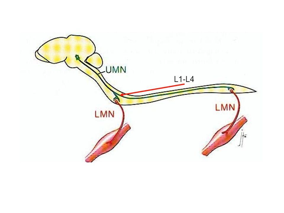 L1-L4