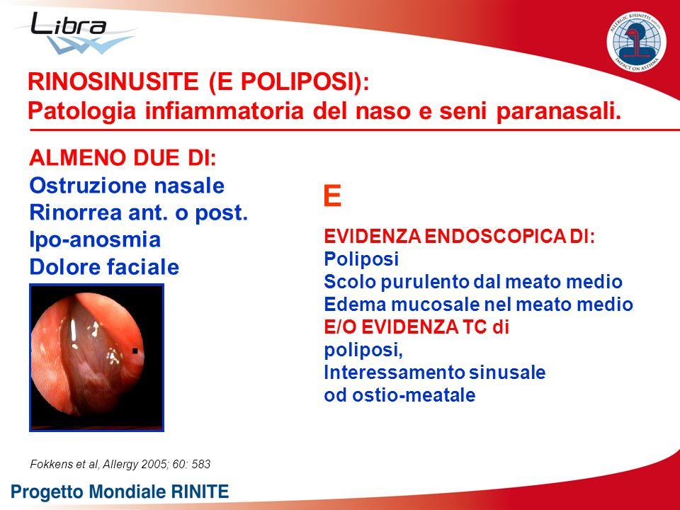RINOSINUSITE (E POLIPOSI): Patologia infiammatoria del naso e seni paranasali. ALMENO DUE DI: Ostruzione nasale Rinorrea ant. o post. Ipo-anosmia Dolo