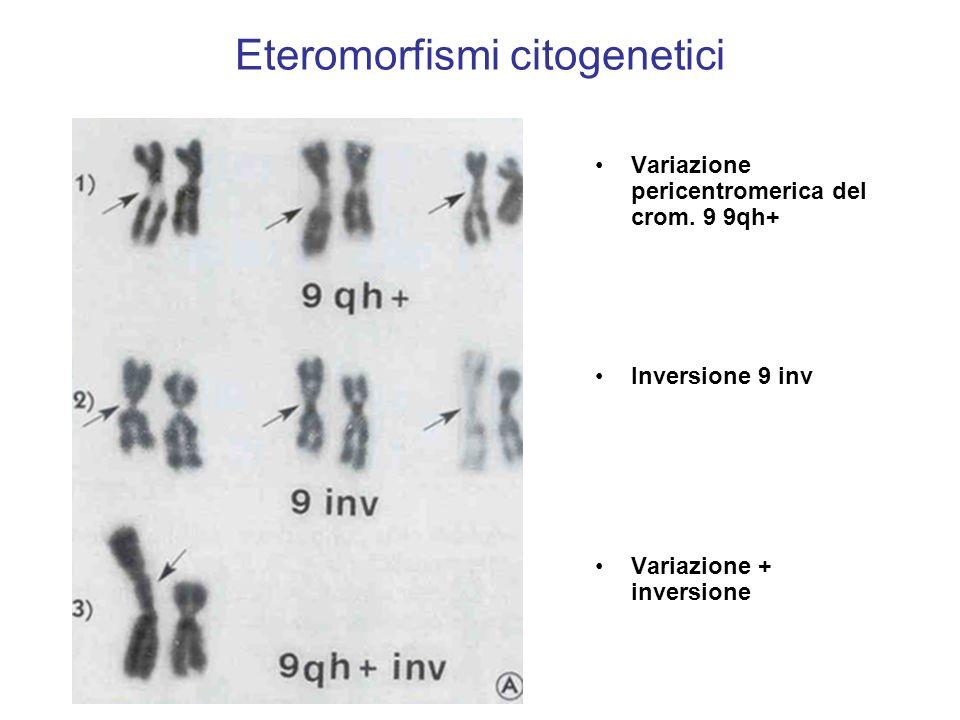 Eteromorfismi citogenetici Variazione pericentromerica del crom. 9 9qh+ Inversione 9 inv Variazione + inversione