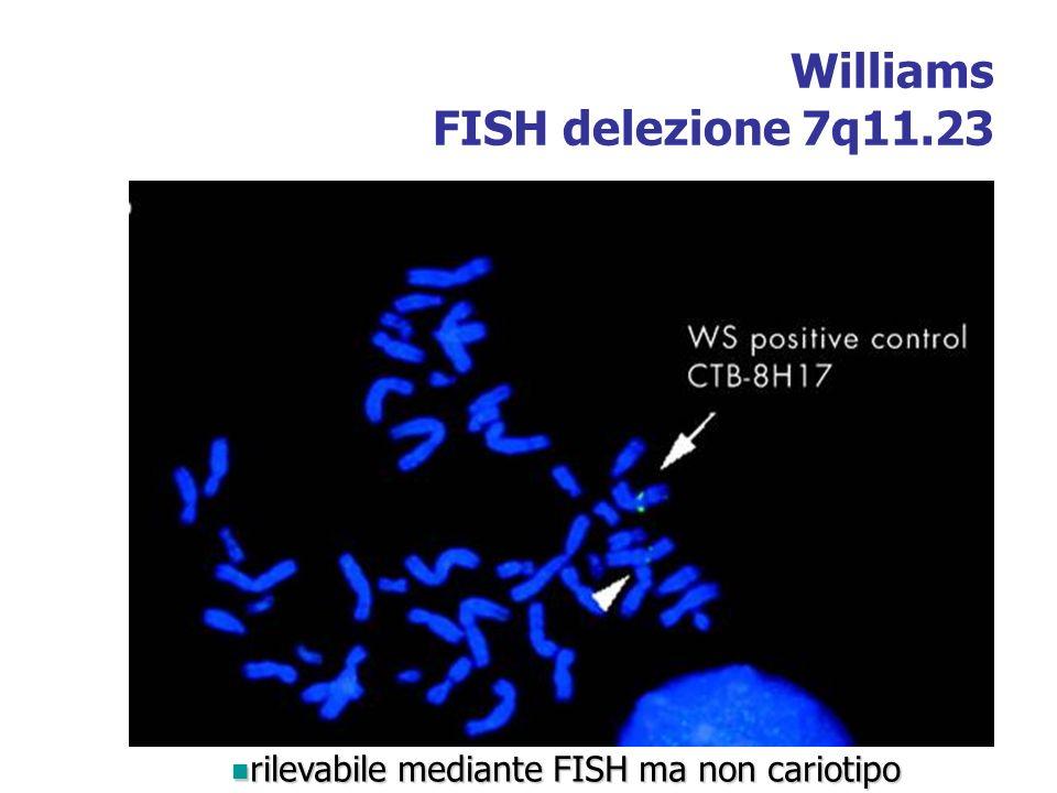 Williams FISH delezione 7q11.23 rilevabile mediante FISH ma non cariotipo rilevabile mediante FISH ma non cariotipo