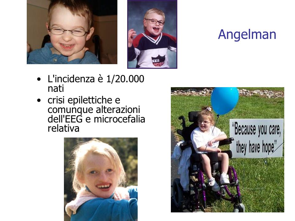 L incidenza è 1/20.000 nati crisi epilettiche e comunque alterazioni dell EEG e microcefalia relativa Angelman