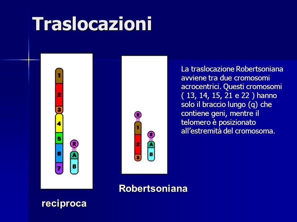 Traslocazionireciproca Robertsoniana La traslocazione Robertsoniana avviene tra due cromosomi acrocentrici. Questi cromosomi ( 13, 14, 15, 21 e 22 ) h