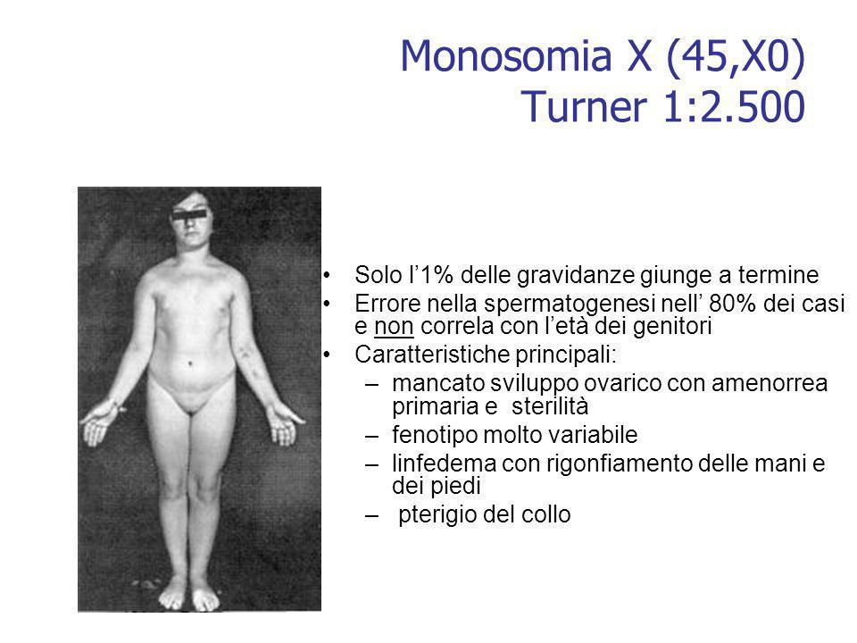 Monosomia X (45,X0) Turner 1:2.500 Solo l1% delle gravidanze giunge a termine Errore nella spermatogenesi nell 80% dei casi e non correla con letà dei