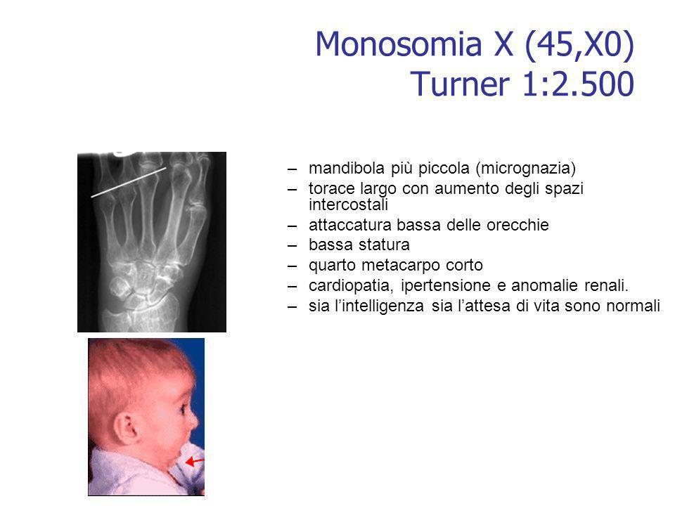 Monosomia X (45,X0) Turner 1:2.500 –mandibola più piccola (micrognazia) –torace largo con aumento degli spazi intercostali –attaccatura bassa delle or