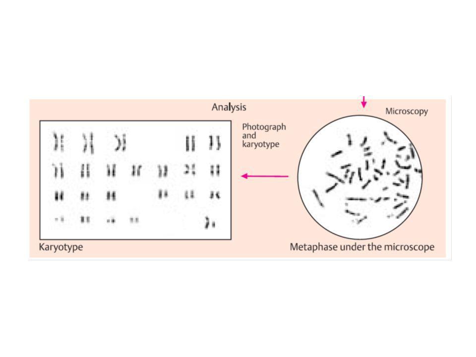 metacentrici, se il centromero è centrale 1, 2, 3, 16, 17, 18, 19 submetacentrici, se il centromero non è centrale e non è vicino ad unestremità 4, 5, 6, 7, 8, 9, 10, 11, 12, 20, X, Y acrocentrici, se il centromero è vicino ad unestremità 13, 14, 15, 21, 22