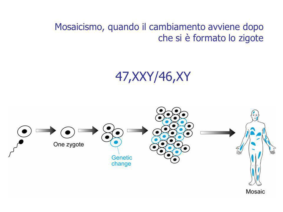 47,XXY/46,XY Mosaicismo, quando il cambiamento avviene dopo che si è formato lo zigote
