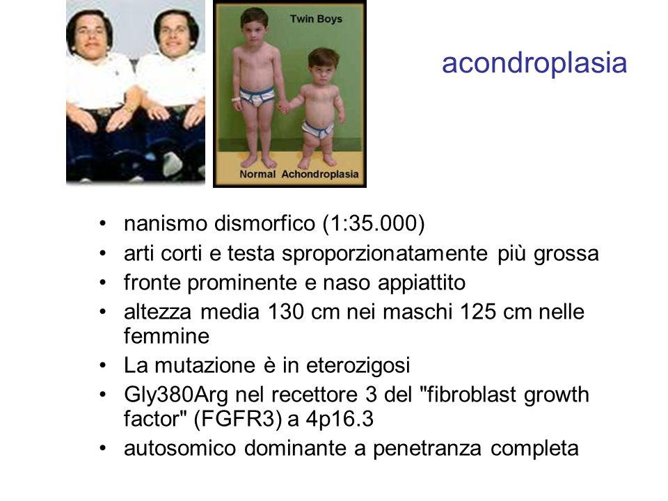 acondroplasia nanismo dismorfico (1:35.000) arti corti e testa sproporzionatamente più grossa fronte prominente e naso appiattito altezza media 130 cm nei maschi 125 cm nelle femmine La mutazione è in eterozigosi Gly380Arg nel recettore 3 del fibroblast growth factor (FGFR3) a 4p16.3 autosomico dominante a penetranza completa