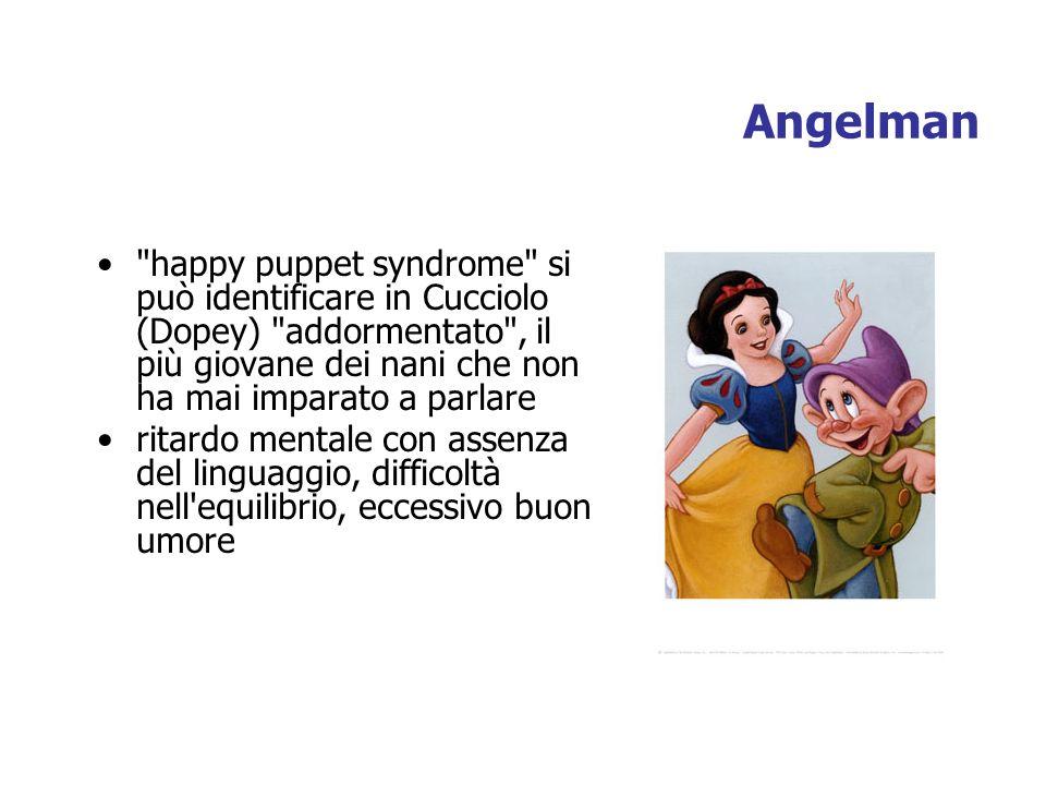 happy puppet syndrome si può identificare in Cucciolo (Dopey) addormentato , il più giovane dei nani che non ha mai imparato a parlare ritardo mentale con assenza del linguaggio, difficoltà nell equilibrio, eccessivo buon umore Angelman