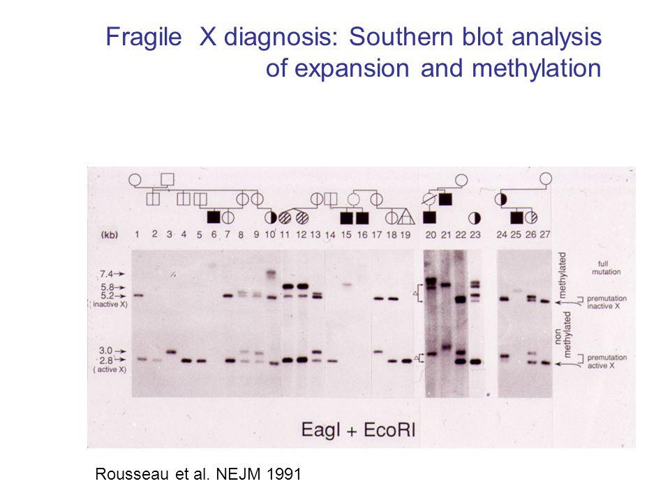 Fragile X diagnosis: Southern blot analysis of expansion and methylation Rousseau et al. NEJM 1991