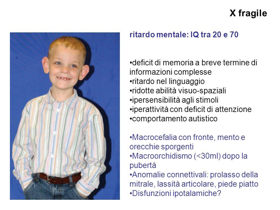 X fragile ritardo mentale: IQ tra 20 e 70 deficit di memoria a breve termine di informazioni complesse ritardo nel linguaggio ridotte abilità visuo-sp