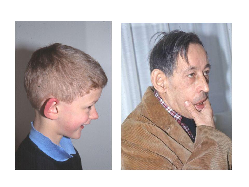 Nel 1969 Lubs osservò una costrizione (marker X) sul braccio lungo del cromosoma X in quattro maschi affetti e tre carriers obbligate della stessa famiglia