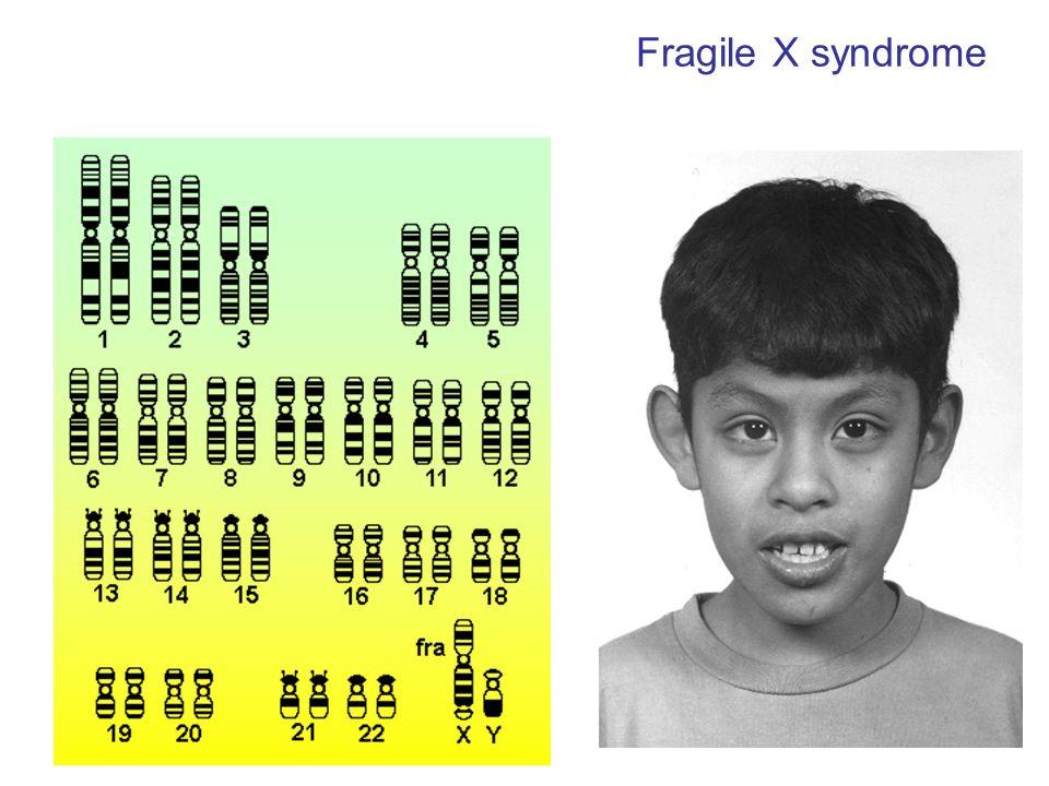 Spine dendritiche nel neocortex lunghe ed immature anche nel topo KO