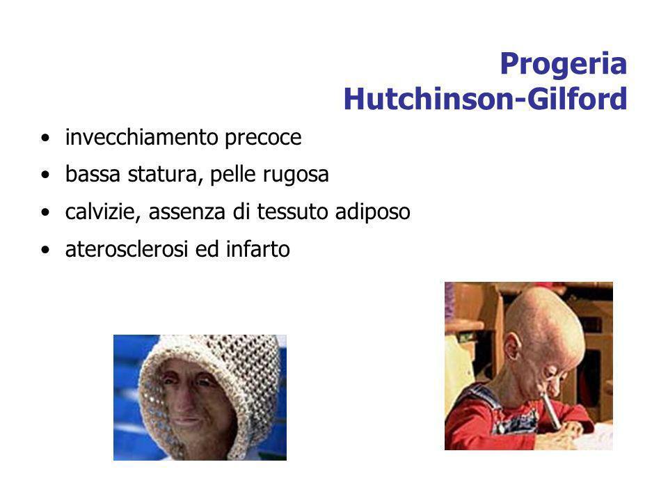 Progeria Hutchinson-Gilford invecchiamento precoce bassa statura, pelle rugosa calvizie, assenza di tessuto adiposo aterosclerosi ed infarto