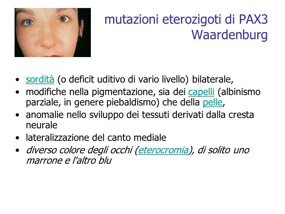 mutazioni eterozigoti di PAX3 Waardenburg sordità (o deficit uditivo di vario livello) bilaterale,sordità modifiche nella pigmentazione, sia dei capel