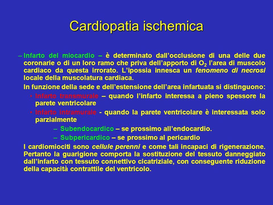 Cardiopatia ischemica –Infarto del miocardio – è determinato dallocclusione di una delle due coronarie o di un loro ramo che priva dellapporto di O 2