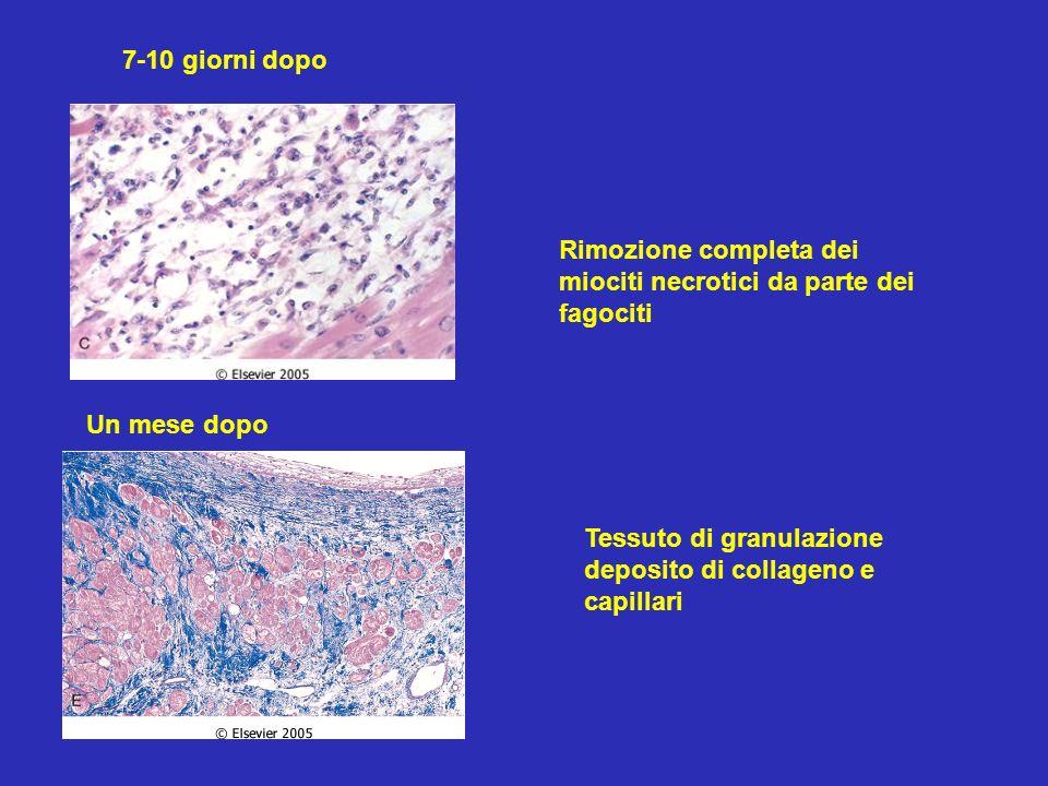 7-10 giorni dopo Rimozione completa dei miociti necrotici da parte dei fagociti Un mese dopo Tessuto di granulazione deposito di collageno e capillari
