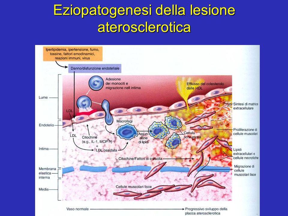 Eziopatogenesi della lesione aterosclerotica