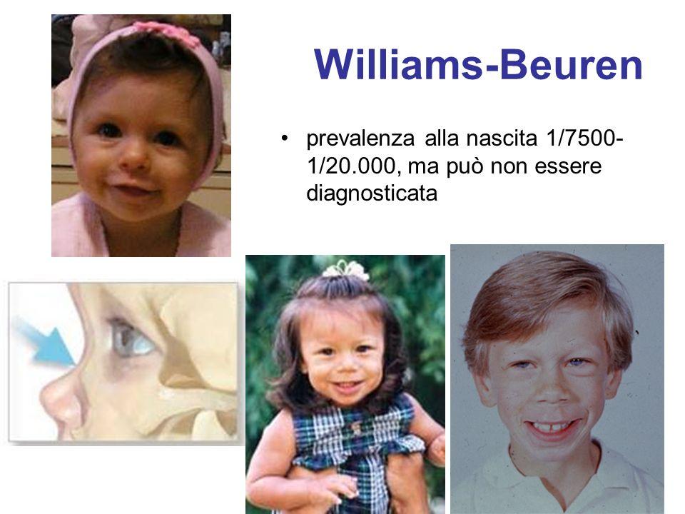 Williams-Beuren prevalenza alla nascita 1/7500- 1/20.000, ma può non essere diagnosticata