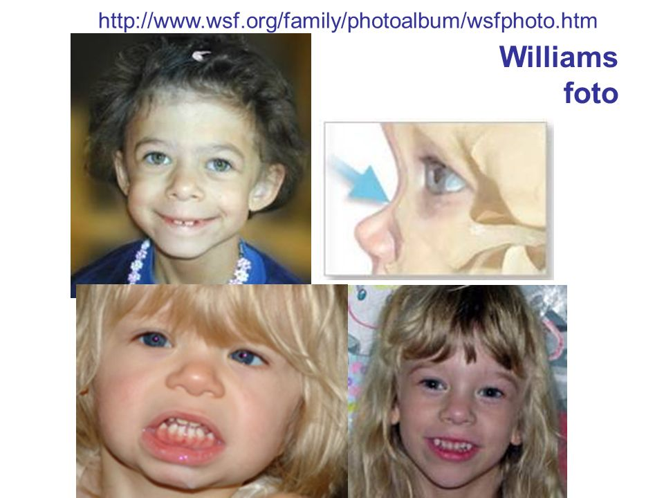 http://www.wsf.org/family/photoalbum/wsfphoto.htm Williams foto